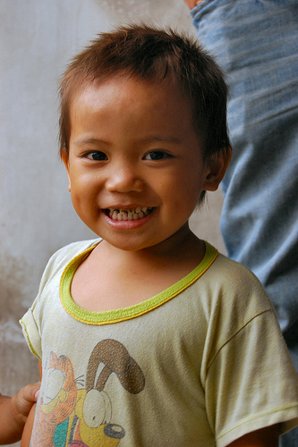 Importance of Adopting a Child with Down Syndrome
